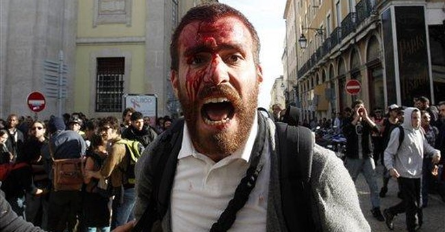 Portugal probes press injuries in police charge