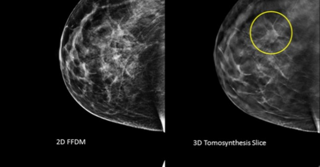 3-D mammogram scans may find more breast cancer