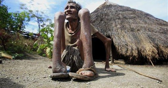 Tiny East Timor declares war on leprosy
