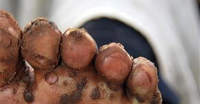 Horror disease hits Uganda