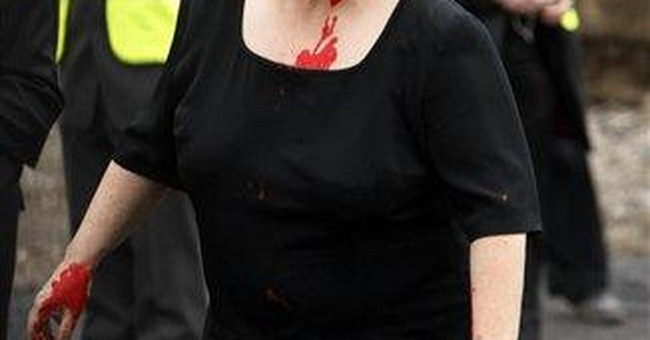 Irish health minister pelted with paint over cuts