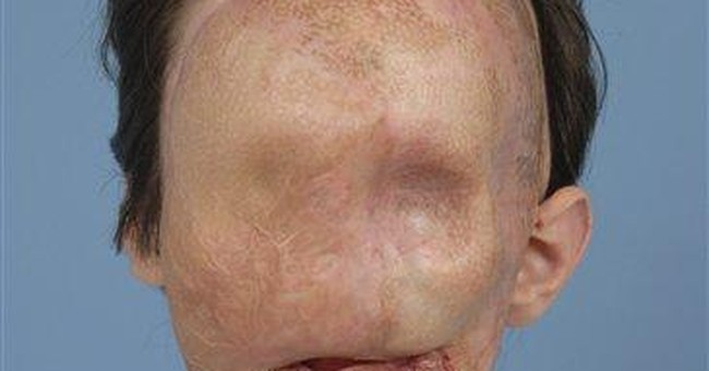 Full face transplant patient makes 1st appearance