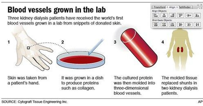 Diabetics get blood vessels made from donor cells