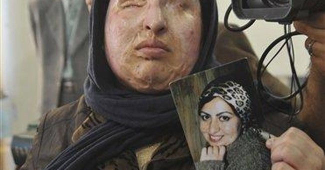 Iranian blinded by acid pardons her attacker