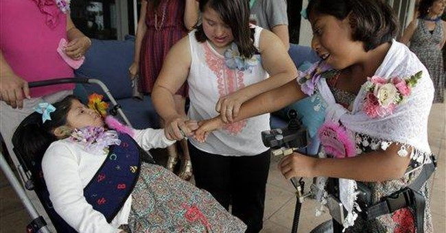 Formerly conjoined Guatemalan twin girls turn 10
