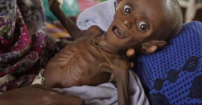 Malnourished Somali baby thriving as rare success