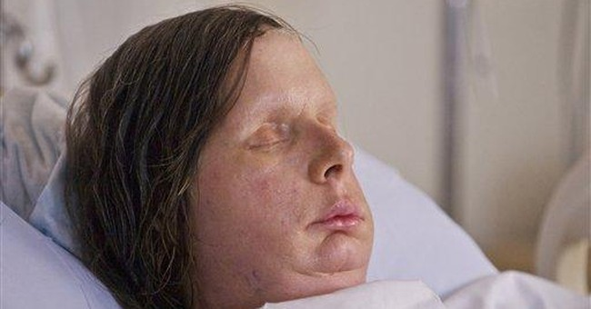'Amazing' normalcy for those with face transplants