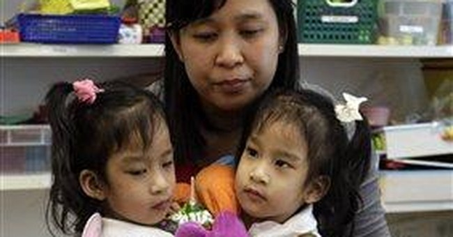 Calif. girls joined at chest to be separated
