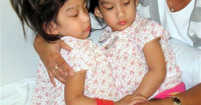 Surgeons separate California conjoined twins