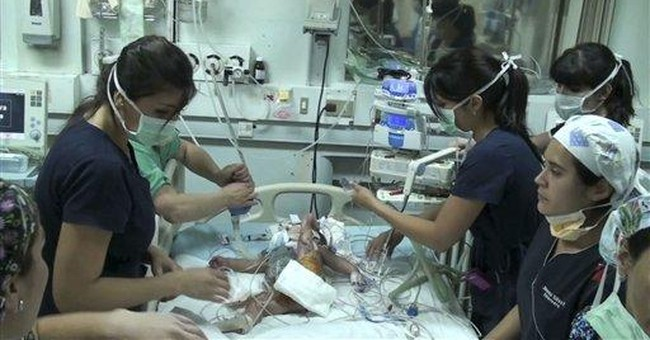 Chilean doctors separate conjoined twins