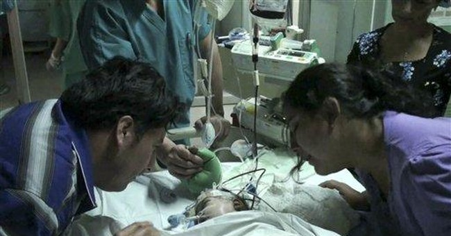 Chilean twins in delicate condition post-surgery