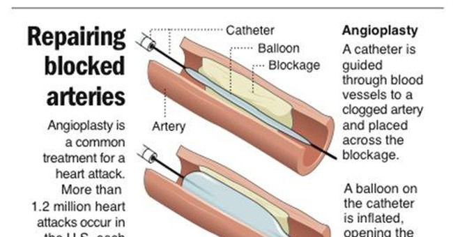 Studies question heart bypass, angioplasty method