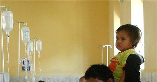 Doctors in Peru to remove 'parasitic twin'