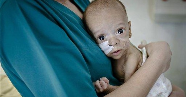 Hope for Romania baby born with stunted intestines