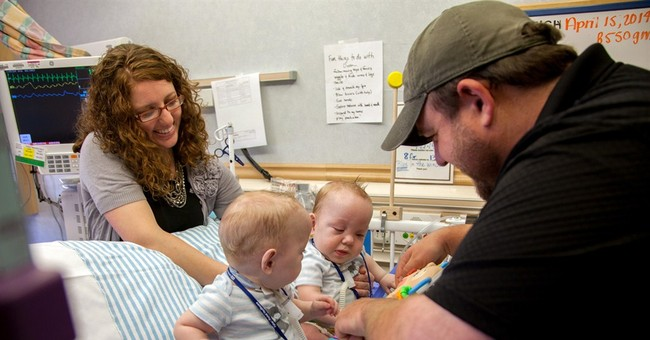 Formerly conjoined twins leave Dallas hospital