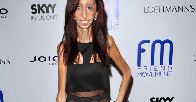 'World's ugliest woman' pursues anti-bullying film