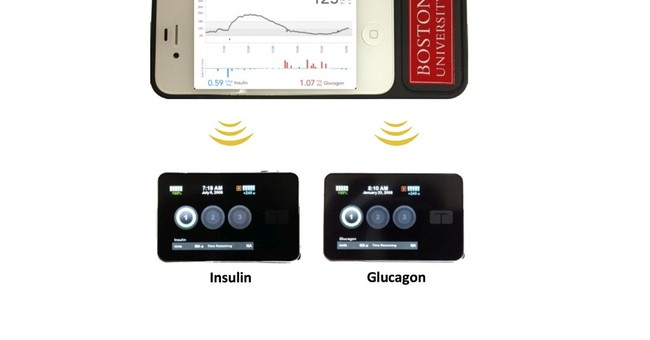 Progress made on a 'bionic pancreas' for diabetics