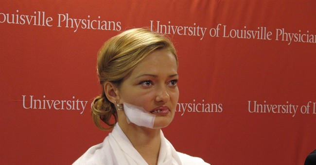 Doctors reconstructing face of stricken woman