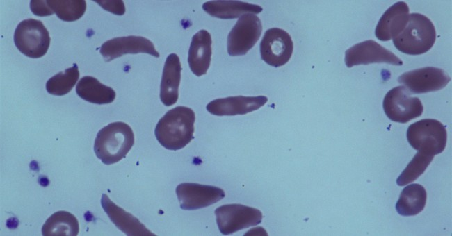 Marrow transplants can reverse adult sickle cell