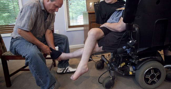Ohio conjoined brothers marking a milestone