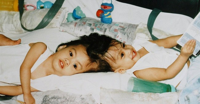 Mother of once-conjoined twins thanks NY doctors