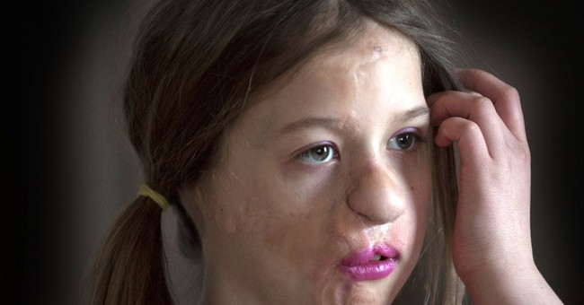 Michigan girl mauled by raccoon finishes surgeries