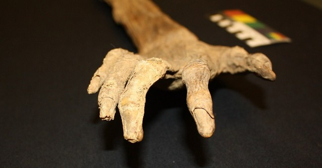 Severed arm grabs spotlight at Civil War museum