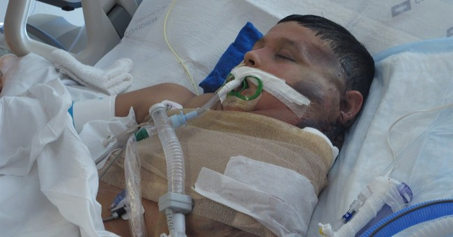 Mexican boy who had massive tumor recovering