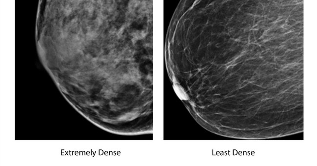 Testing quandary for women with dense breasts