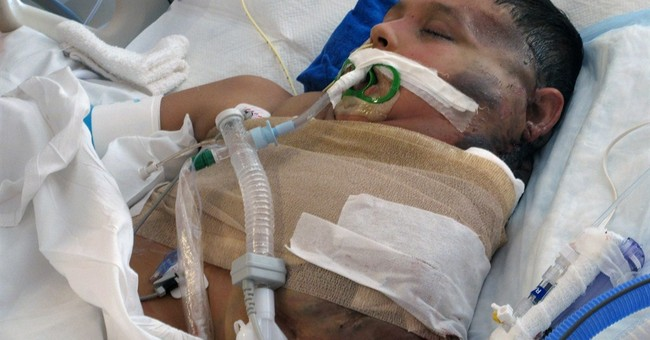 Mexican boy with massive tumor moved out of ICU