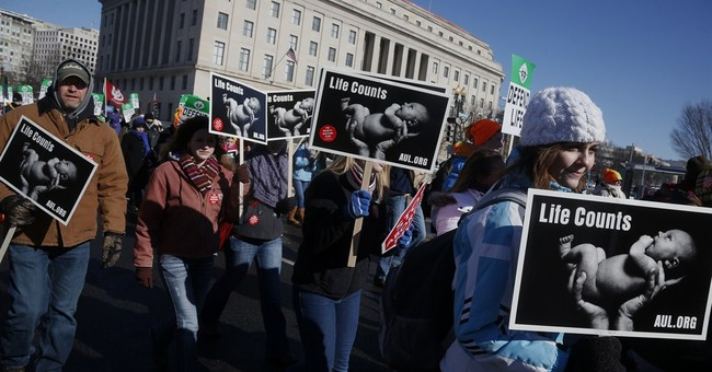 Mississippi Abortion Ban Is Sane and Humane