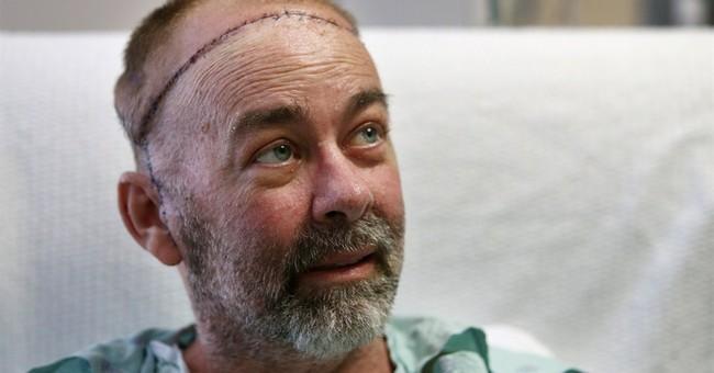 Texas doctors do world's first skull-scalp transplant