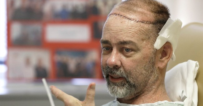Texas doctors do world's first skull-scalp transplant