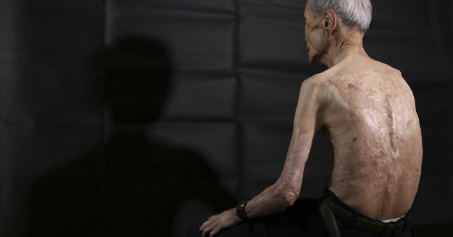 AP PHOTOS: Nagasaki atomic bomb left a man scarred for life