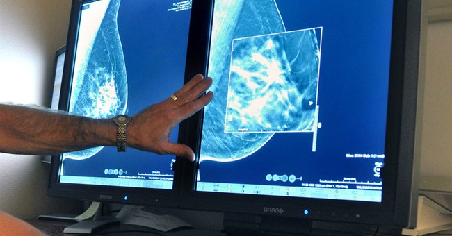 Earliest breast cancer risky for some women, study suggests