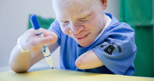 1st of Tanzanian albino kids with missing limbs goes home