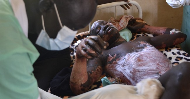 Death toll rises to 183 in South Sudan fuel tanker explosion