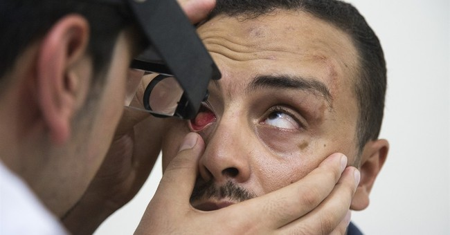 Prosthetic eye maker brings relief to wounded Gazans