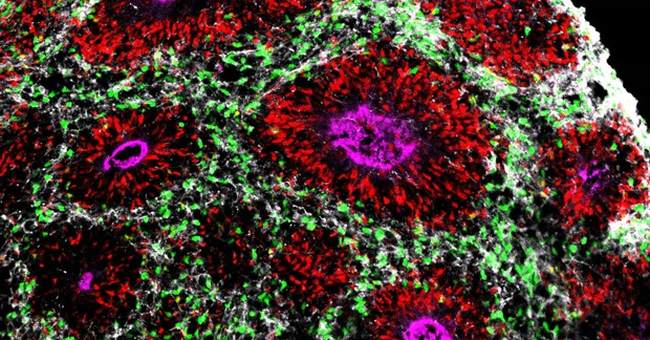 Researchers grow brain parts to study development, disease