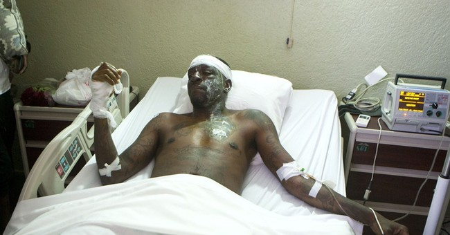 Burned singer describes deadly Haiti Carnival accident