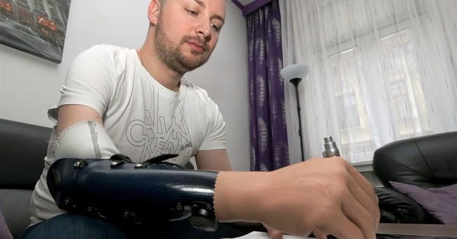 3 Austrians get bionic hands after amputation