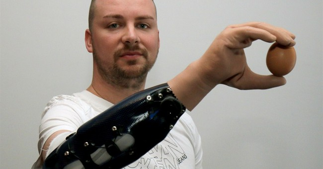 3 men 1st to get reconstructed bionic hands after amputation