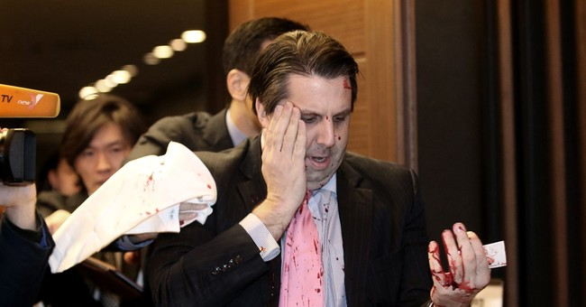 US envoy to SKorea in stable condition after knife attack