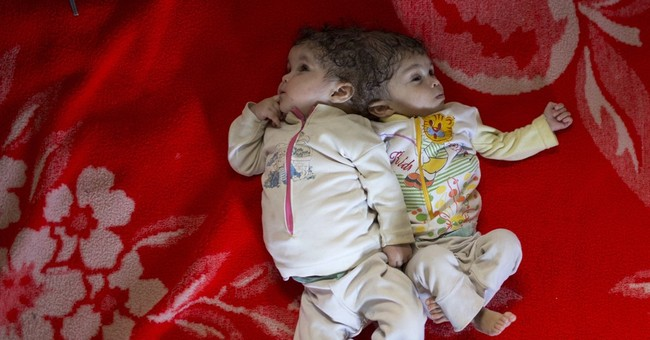 Egyptian family seeks help for conjoined twins