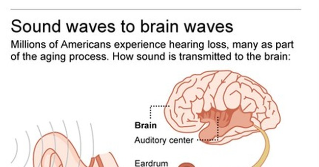 Panel: Treating hearing loss shouldn't be a pricey hassle