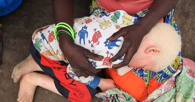 Malawi sees surge in attacks on albinos; victims speak out