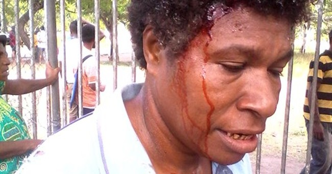 Police, students clash in Papua New Guinea; 23 injured