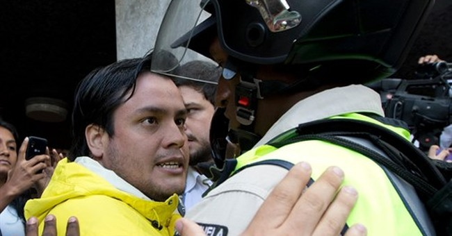 Venezuela opposition leader hit with a pipe in the face