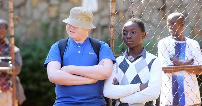 Zimbabwe: Ostracized albinos describe life as hell on earth