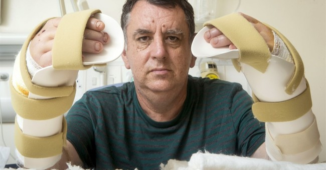 Man doing well after UK's first double hand transplant